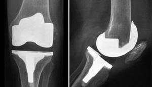 knee-prosthesis