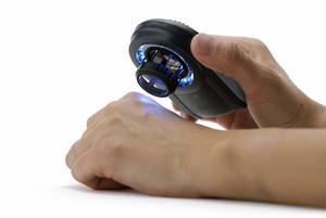 dermatoscope