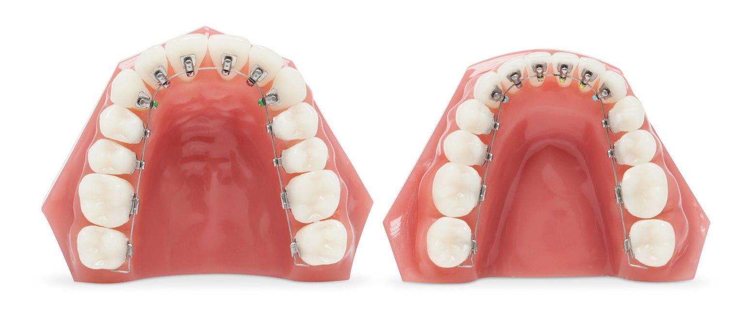 「orthodontics alias」の画像検索結果
