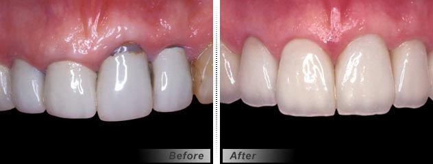 PFM Dental Crown ProCeramTM Glidewell Europe GmbH