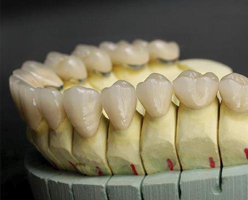 PFM Dental Crown Anterior Teeth Posterior CLASSIC Derby