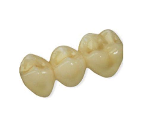 PMMA Dental Bridge Anterior Teeth Posterior