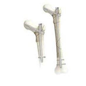 trochanteric intramedullary nail / not specified - Gamma3