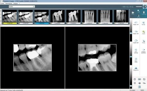 visiodent imaging
