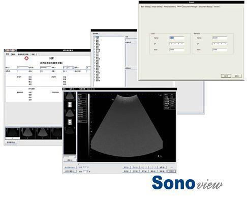 On Platform Ultrasound System For Multipurpose Ultrasound Imaging