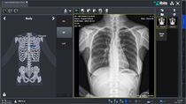 Viewer software / radiography