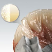 Zirconia dental material / CAD/CAM / highly translucent