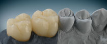 Hybrid-ceramic dental material / for dental crowns