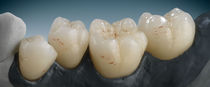 Ceramic dental material / for dental crowns / highly translucent