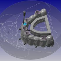 CAD software / CAM / prosthesis fabrication / dental