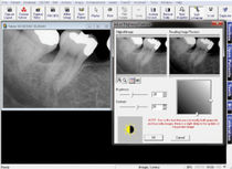 Image capture software / data management / diagnostic / for dental imaging