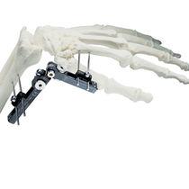 Wrist external fixation system / tubular / adult