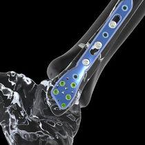 Fibula compression plate / distal