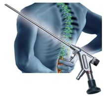 Spinalscope endoscope / bent / with working channel