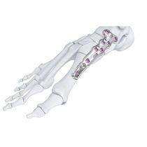 Tarso-metatarsal joint arthrodesis plate
