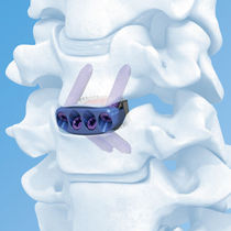 Cervical interbody fusion cage / anterior
