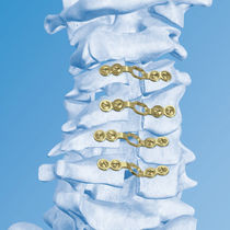 Laminoplasty compression plate / cervical vertebra