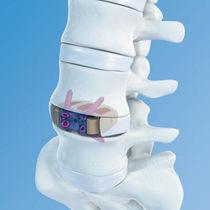 Lumbar interbody fusion cage / anterior