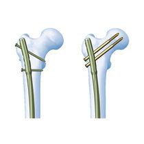 Femur intramedullary nail