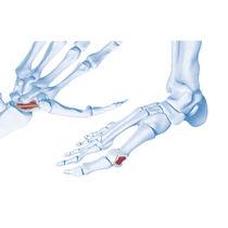 Carpal joint compression bone screw