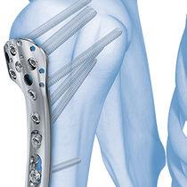 Humerus compression plate / anterolateral