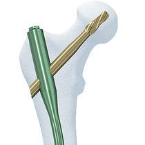Femur intramedullary nail / trochanteric / proximal