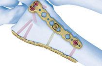 Radius compression plate / distal