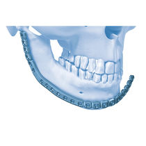 Mandible compression plate / distal