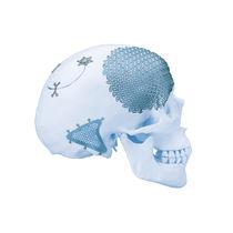 Cranial implant