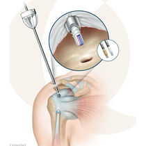 Rotator cuff suture anchor / non-absorbable