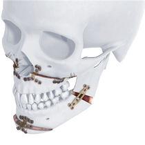 Maxilla osteotomy plate / mandible