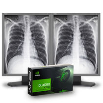 Diagnostic display / radiology / monochrome / LCD