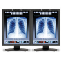 Radiology display / diagnostic / LCD / LED-backlit