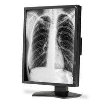 Radiology display / diagnostic / LCD