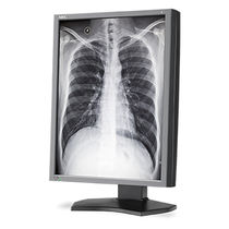 Diagnostic display / medical imaging / LCD