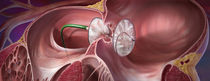 Atrial septal defect occlusion device