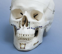 Genioplasty compression plate / mandible / maxillofacial reconstruction