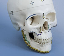 Maxillofacial reconstruction compression plate / genioplasty / mandible
