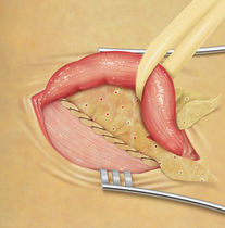 implantable mesh prosthesis for inguinal hernias (laparoscopic surgery) BIODESIGN® COOK Medical
