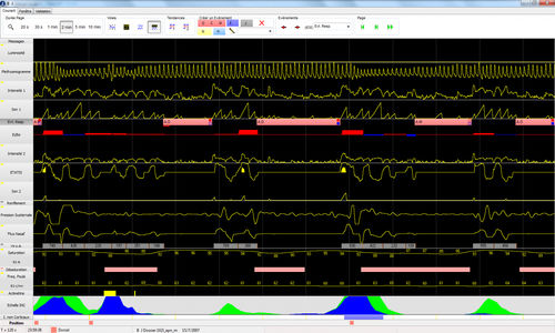 analysis software / polysomnography / polygraphy / for hospitals