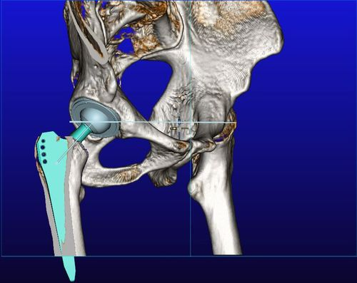 3D viewing software / DICOM viewing / preoperative planning / 3D simulation