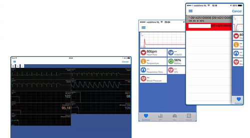telemonitoring iOS application / diagnostic / cardiovascular