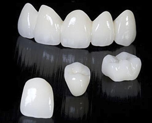 Zirconia Dental Bridge Anterior Teeth CRYSTAL Derby
