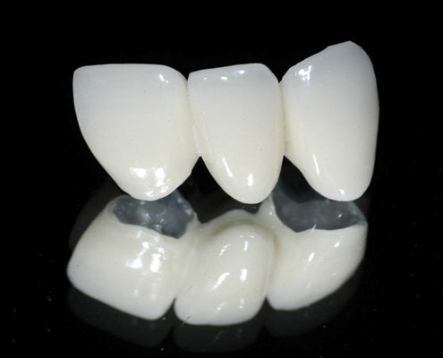 PFM Dental Bridge Anterior Teeth Posterior CLASSIC Derby
