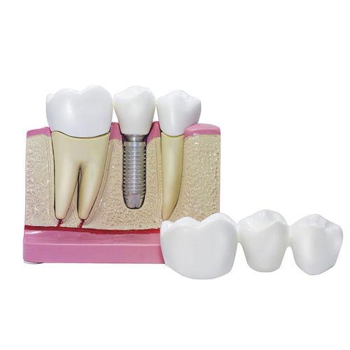demonstration anatomical model / dental / for implantology