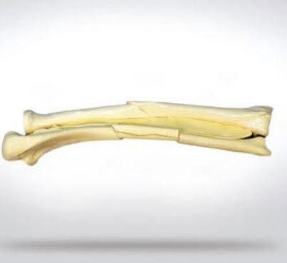 bone model / radius / ulna / for teaching