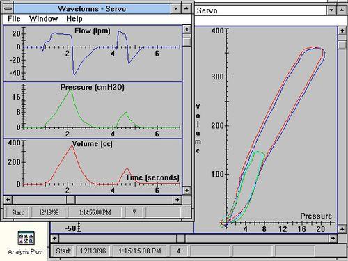 training software / simulation / pulmonary testing