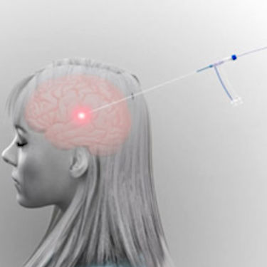 Brain tumor treatment laser ablation system / MRI-guided Visualase Medtronic