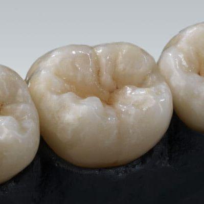 zirconia dental material / CAD/CAM / for dental crowns / for dental veneers