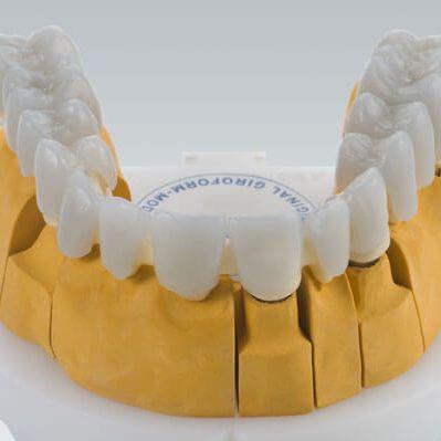 wax dental material / for dental restorations / white